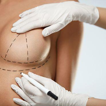 Göğüs Operasyonları